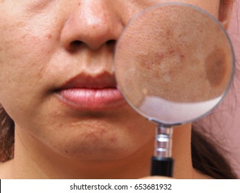 Close up melasma skin by magnifying glass on woman face, facial scar, melasma skin, skin problem, beauty concept