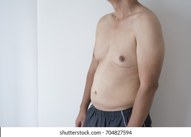 Man boobs fat skinny Gynecomastia: Foods