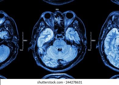 Close up of MRI brain : Lower part of brain ( eyes , temporal lobe of cerebrum , cerebellum , brain stem )