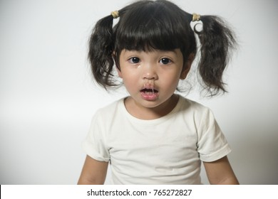Close up Mucus flowing from nose of little Asian girl. child has a runny nose with clear snot,virus isolated on white background