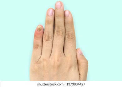 Close up of nail fungus infection on the little finger. Human hand suffering from fungus infection.