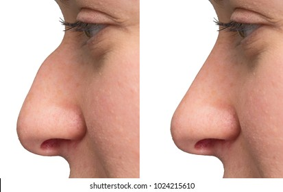 Close up of nose before and after surgery