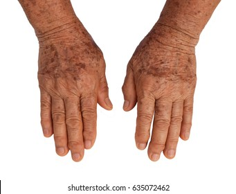Close up old female hand full of freckles on white background with clipping paths.