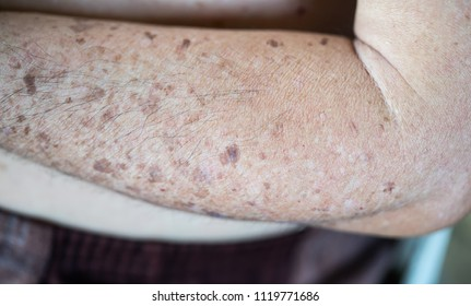 Close up old senior man face and arms, melasma, freckle, aging, skin problem. Melasma and freckle concept.