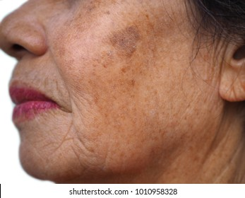 Close up old woman face, melasma, freckle, aging, skin problem