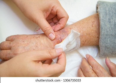 Close up old woman hand, upper limb or arm to the wounded waiting for nurse treatment on wound dressing a bloody and brine of patient on white background.