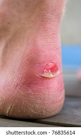 Close up on human heel with a chafe (blister)