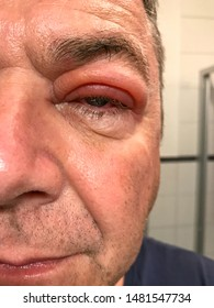 Close up on a man with a swollen upper eyelid and oozing inflamed red eye in a half face portrait in an ophthalmology, medical and healthcare concept