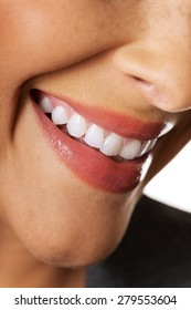 Close up on woman white teeth.