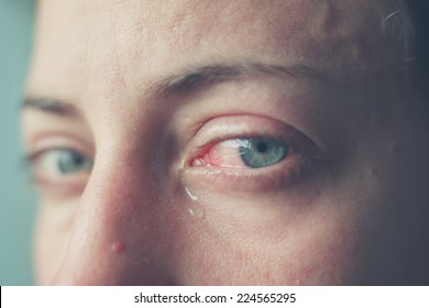 Close up on a woman's bloodshot crying eyes