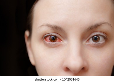 Close up one annoyed red blood human girl eye, health eye affected by conjunctivitis or after flu cold allergy. Looking camera. Disease treatment medicine health concept. Copy space. Workspace mockup.