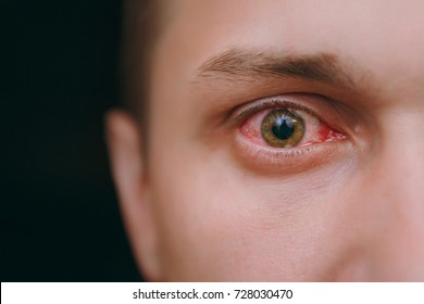 Close up of one annoyed red blood eye of male affected by conjunctivitis or after flu, cold or allergy. Concept of health, disease and treatment. Copy space for advertisement. With place for text.