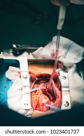 Close up of open heart surgery cardiopulmonary bypass, minimal invasive cardiac surgery, cannulation techniques. Minimally invasive mitral surgery through mini-thoracotomy with cannula