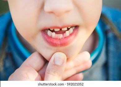 Close up of open mouth of little caucasian child with growing new teeth.