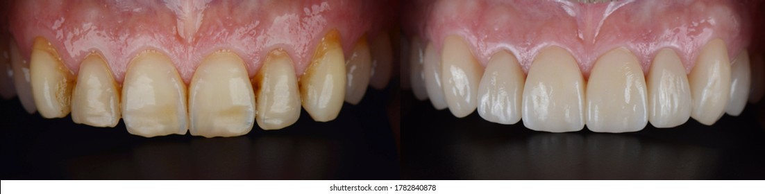 Close up in oral of front teeth before and after porcelain laminated dental ceramic veneers treatment for smile makeover.