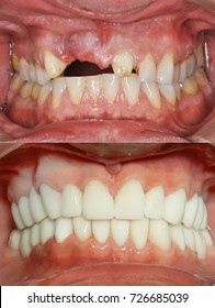A close up of a patient's mouth at a dental clinic. Before and after