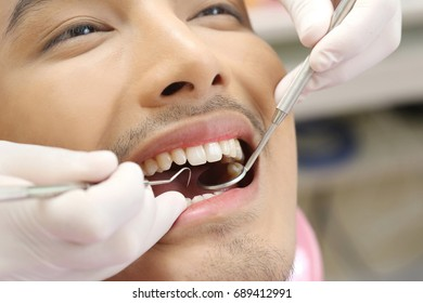 Close up of patients open mouth during oral checkup with mirror and hook near by, good healthcare in clinic room concept. Explorer and Mouth mirror oral examination.