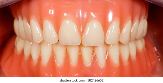 Close up photo of acrylic removable dentures