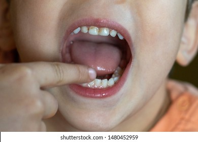 Close up photo of child dental caries. Kid open mouth showing cavities teeth decay. Unhealthy baby teeth.