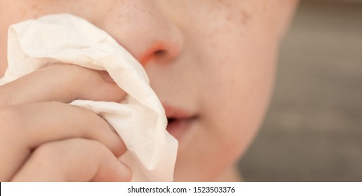 A close up photo of a child's red stuffy nose with a kleenex.
