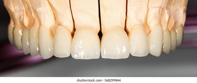 Close up photo of dental ceramic bridge