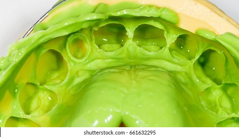Close up photo of green silicone dental impression