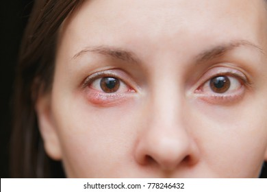 Close up photo of young caucasian brunette woman barley brown eye infection, eyelid abscess, stye, hordeolum. Concept of health, disease and treatment