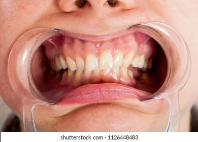 Close up picture of cheek retractor in patient's mouth. Dental treatment