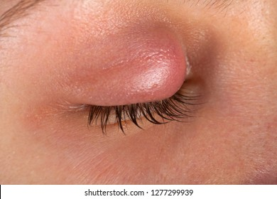 Close up picture of female patient's infected eye. Hordeolum on upper eyelid. Viral Infection. Staphylococcus