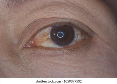 close up of the pinguecula during eye examination.