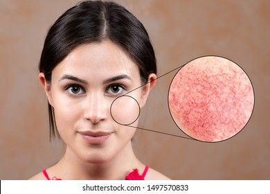 A close up portrait of a beautiful young caucasian lady in her early twenties, a magnified circle shows macro detail of rosacea in the cheek area, red and blushing on closer inspection.