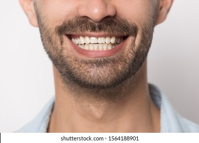 Close up portrait image of wide smiling male mouth. Student healthy clear white teeth, happy businessman, satisfied client, good dental service, dentistry concept, isolated on gray background