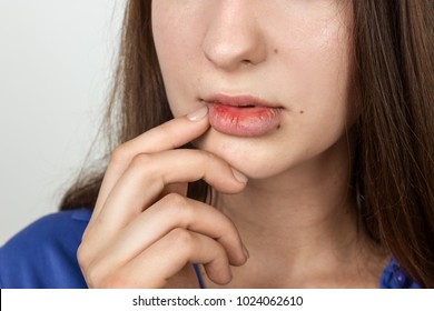 Close up portrait of a pretty woman beautiful lips infected herpes virus. Woman with herpes over gray background  virus.