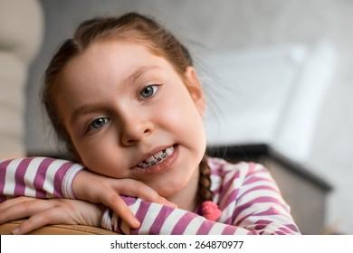 Close up portrait of Smiling girl showing dental braces.