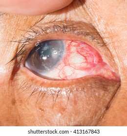 close up of the post operative pterygium excision during eye examination.