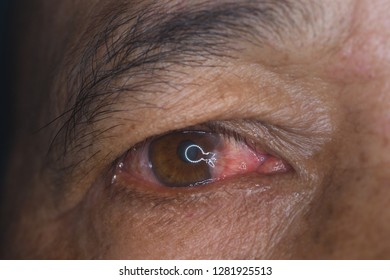 close up of the pterygium during eye examination.