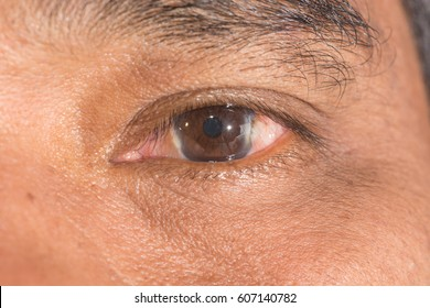 Close up of pterygium during eye examination.