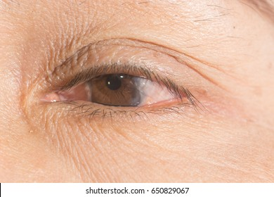 close up of pterygium during ophthalmic examination.