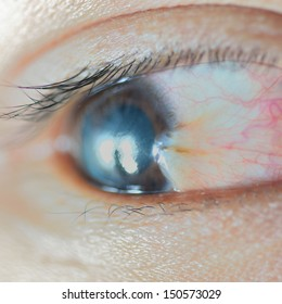 close up of pterygium right eye.