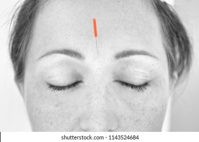 Close up of red headed woman with acupuncture tool attached between her brows in black and white