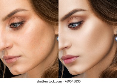 Close up of result of retouch photography beautiful brunette woman. Collage with after and before. Perfect skin, bronze sunburn, long eyelashes, plump lips after retouch. Clean skin and bright makeup.