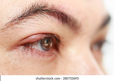 "Close up right upper eye lid abscess ""stye or hordeolum"""