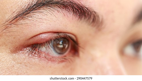 "Close up right upper eye lid abscess ""stye or hordeolum"""