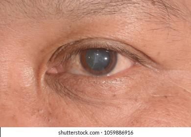 close up of the senile cataract during eye examination, mature cataract, neuclear sclerosis cataract.