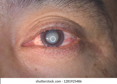 close up of the senile cataract during eye examination, mature cataract, neuclear sclerosis cataract.