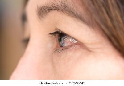 Close up senior eye , Pterygium on eye.