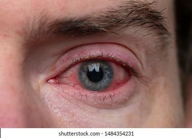 Close up of a severe bloodshot eye. Blepharitis, Conjunctivitis condition