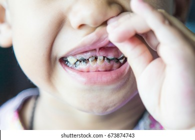 close up shot of baby teeth with caries.