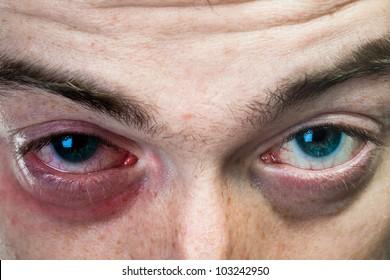 Close up shot of black eye on man face