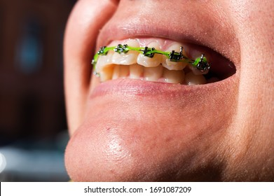 close up shot of a crooked overbite teeth with braces